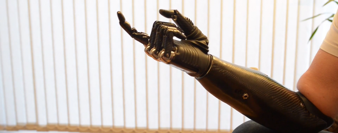 Mintimis valdoma bioninė ranka