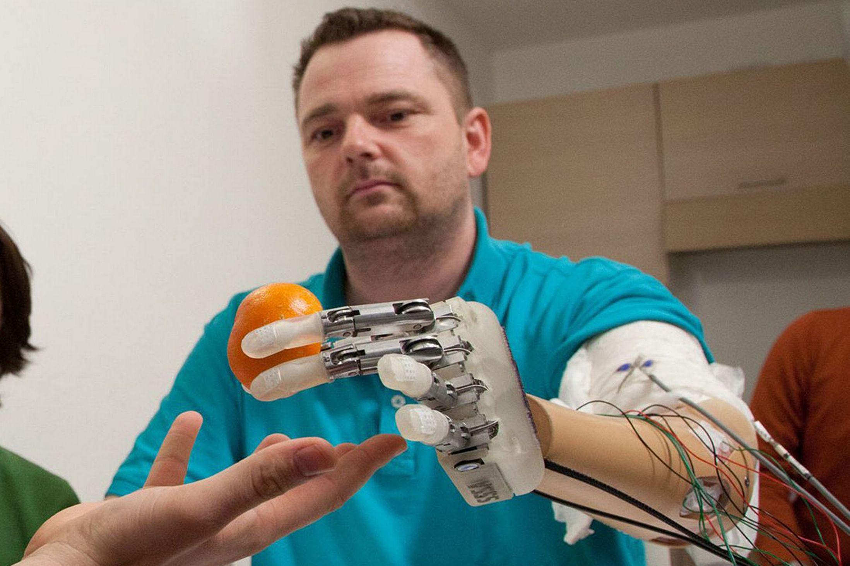 Bioninis jutimą perteikiantis rankos protezas 3