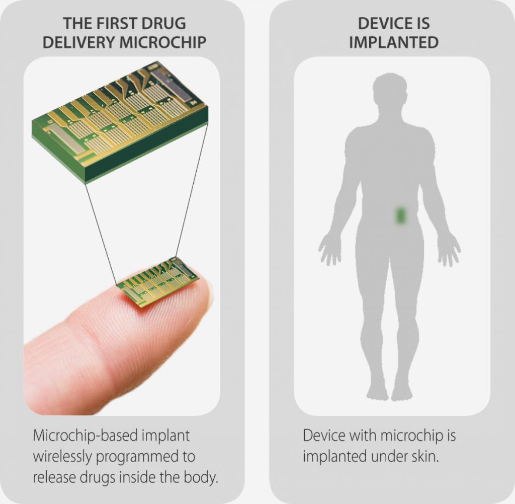 Į kūną implantuojama kontraceptinė mikroschema / MicroCHIPS iliustracija