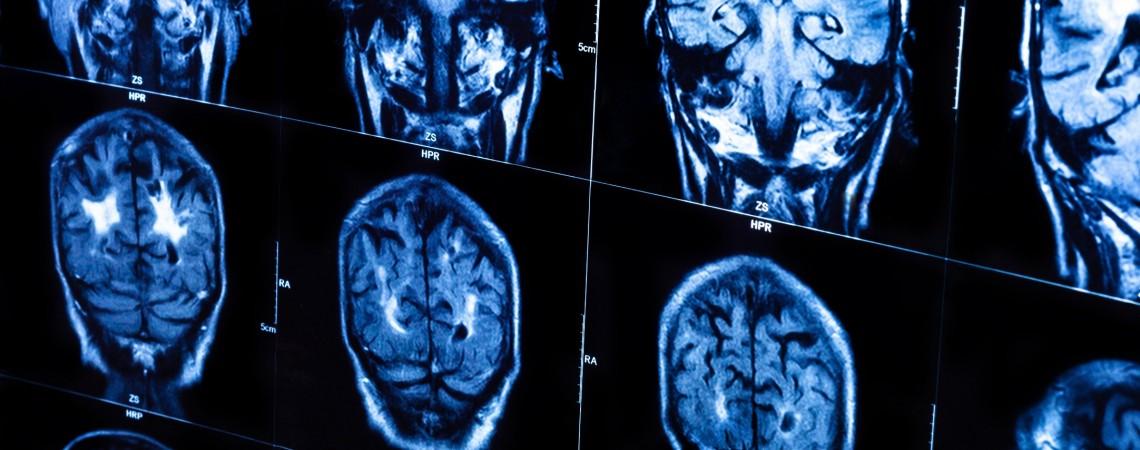 Žmogaus smegenys / gizmodo.com.au